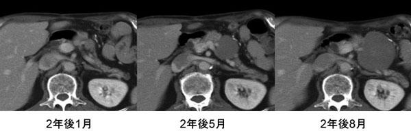 腫瘍 デスモイド