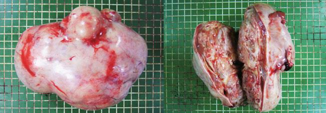 奇形 腫 用 胎児